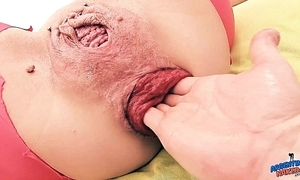 Crackers prolapse milf pussy fisting anal fisting - far-out anal celebrity